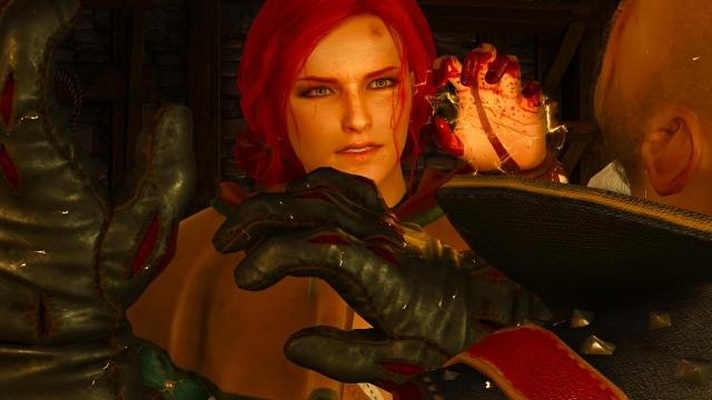 witcher3 Сорвали ногти.